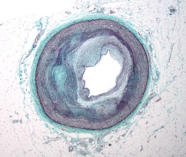 La prise en charge des maladies coronariennes – Pôle info santé – Soyaux